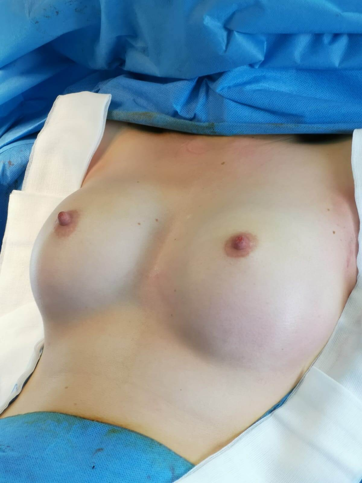 After-Augmentation mammaire